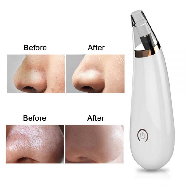 Blackhead Beauty Cleansing Black Head Face Exfoliating Skin Care Beauty Personal Care Blackhead Cleansing Cleaning Tool FoLLoo